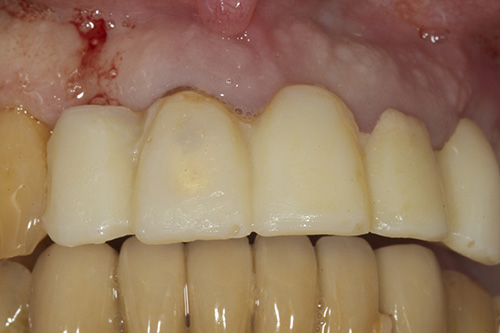 dental implant aftercare instructions