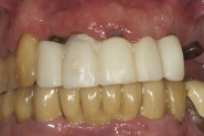 3-tooth-supported-temporary-bridge-in-situ-with-implants-healing-underneath