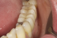 14-3-month-review-of-final-implant-crowns-in-situ