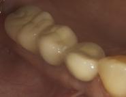 16-mirror-view-of-final-implant-bridge