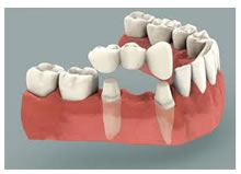 The alternative to a Single Implant is a tooth-supported Bridge where the healthy adjacent teeth are ground down unnecessarily
