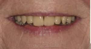 Denture referrals