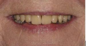 Denture referrals